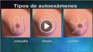 Las 3 formas correctas para realizarse el autoexamen de seno